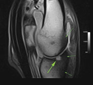 Typical Equine Limb Case Study of Fetlock